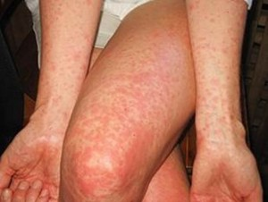 Maculopapular rash: starts on the face and then spreads throughout the body