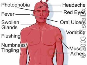 Lassa fever symptoms