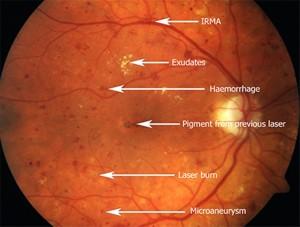 Diabetes-retinopathy
