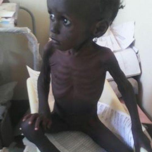 Nigeria's malnutrition situation worsens